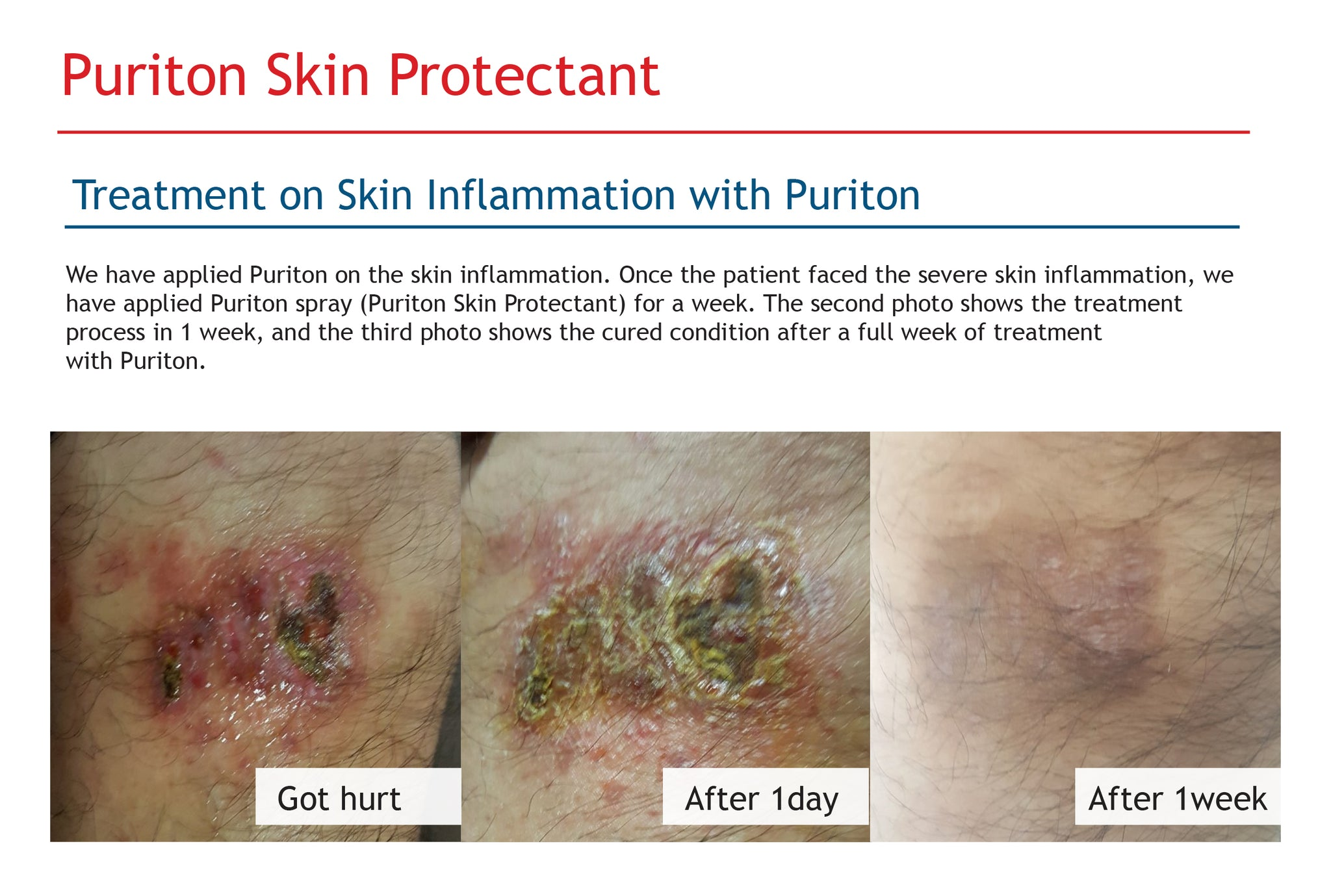 Puriton skin protectant treatment on skin inflammation