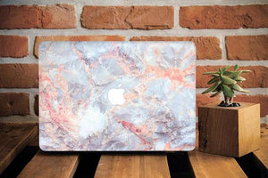 Pastel Marble Macbook Case