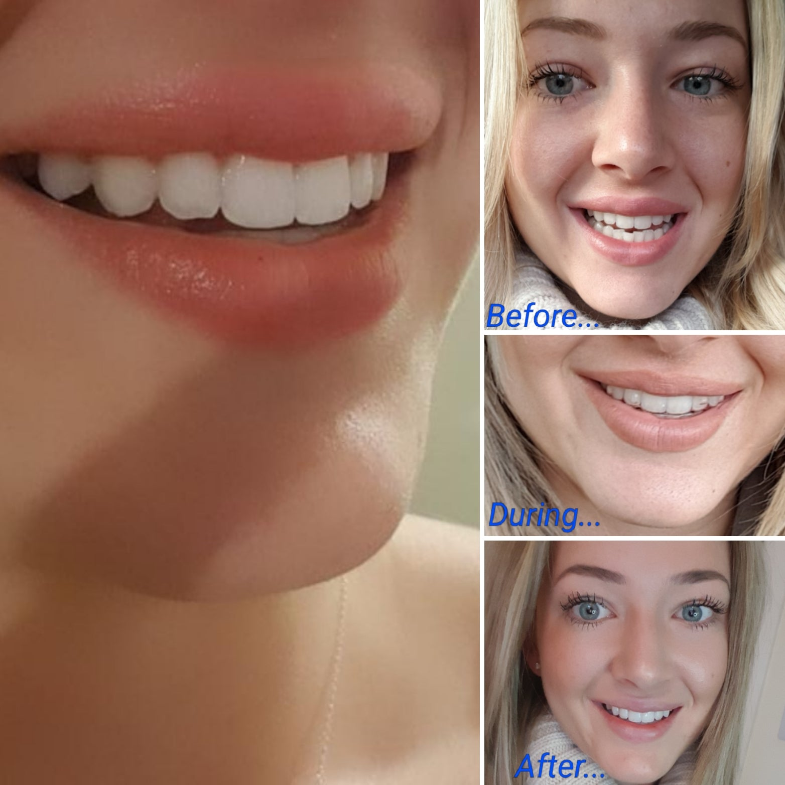 Ever wondered what Teeth Straightening with Invisalign involves?