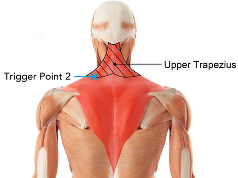 Upper Traps Trapezius Trigger Points