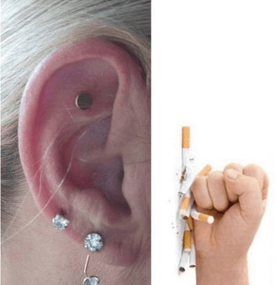Anti-Smoking Acupressure Patch ★★