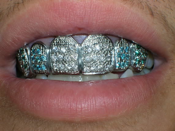 Assorted Playa Grillz