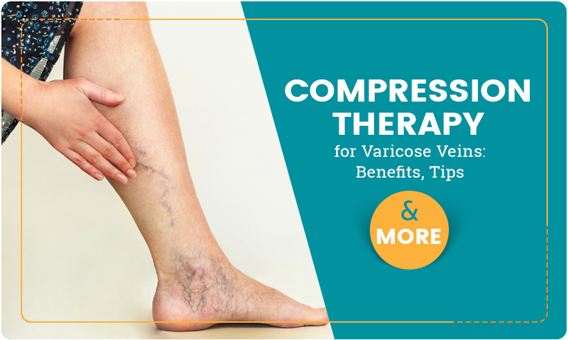 Compression Therapy for Varicose Veins: Benefits, Tips and More