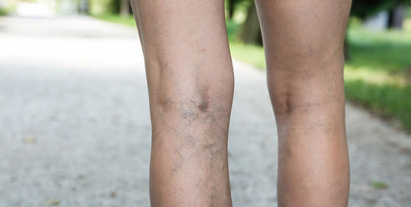 back of legs with varicose veins