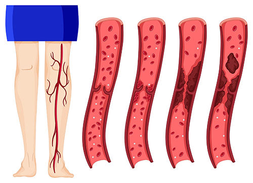 leg blood clot stages