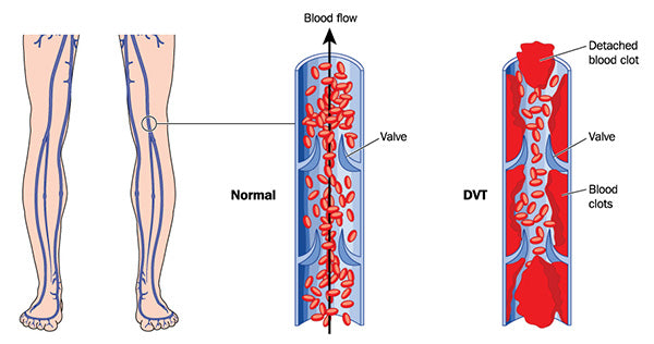 deep vein thrombosis leg