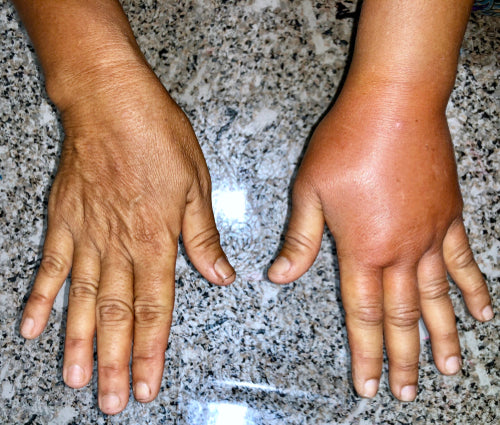 normal right hand vs left swollen hand