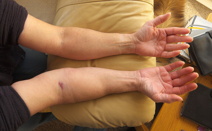 How to Treat Swollen Limbs with Lymphedema Products – Ames Walker