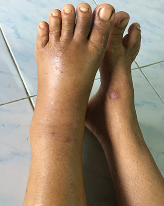 swelling left foot