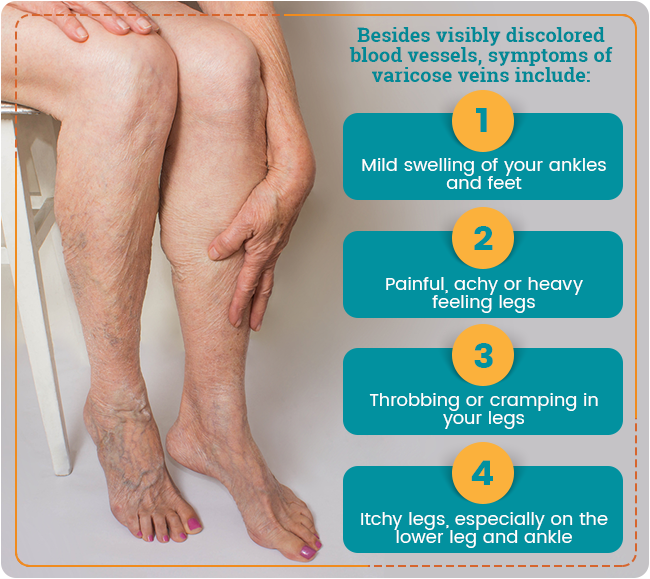 varicose vein symptoms graphic