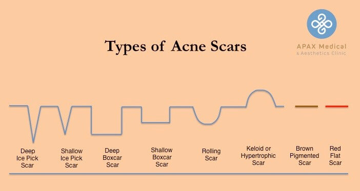 Type of Acne Scars - APAX Medical and Aesthetics Clinic