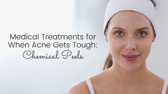 Medical Treatments for When Acne Gets Tough – Part 1