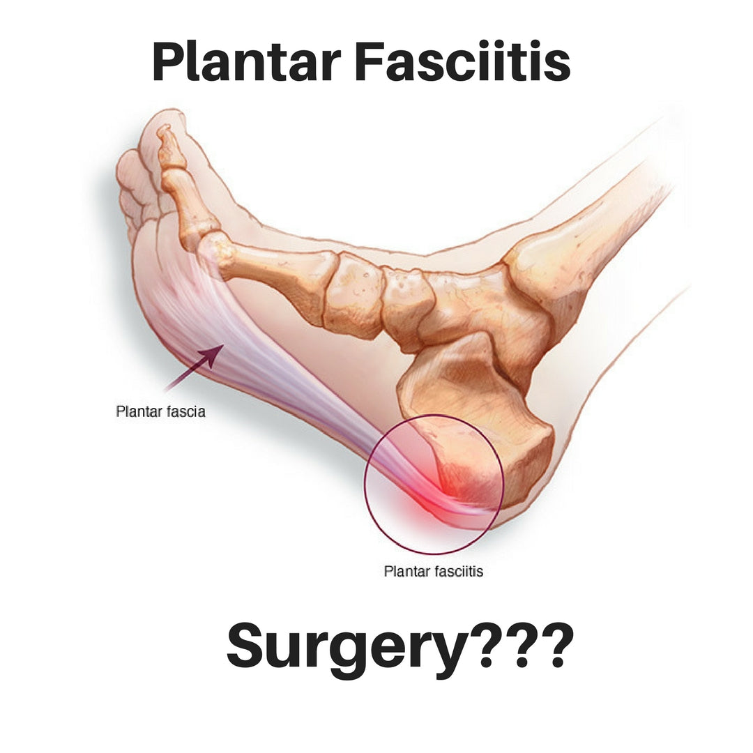 pain fasciitis could facitis heel plantar be planter your