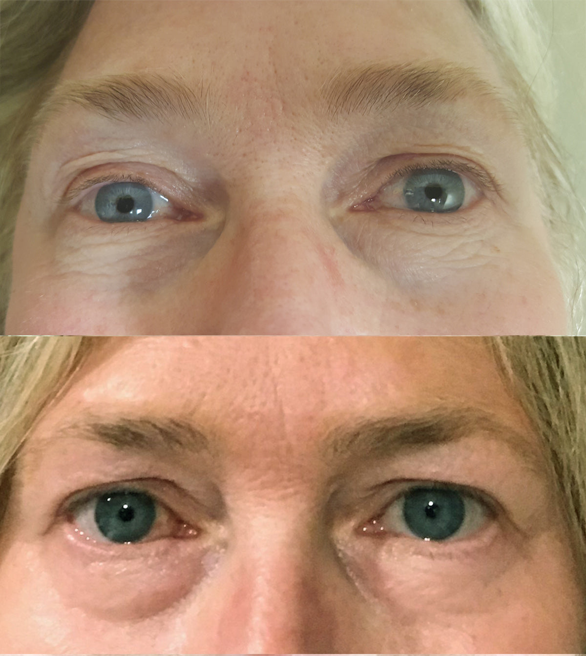 Plasma Pen No Surgery Eyelift Beautiful Laser Center Friendswood TX 409-454-9502