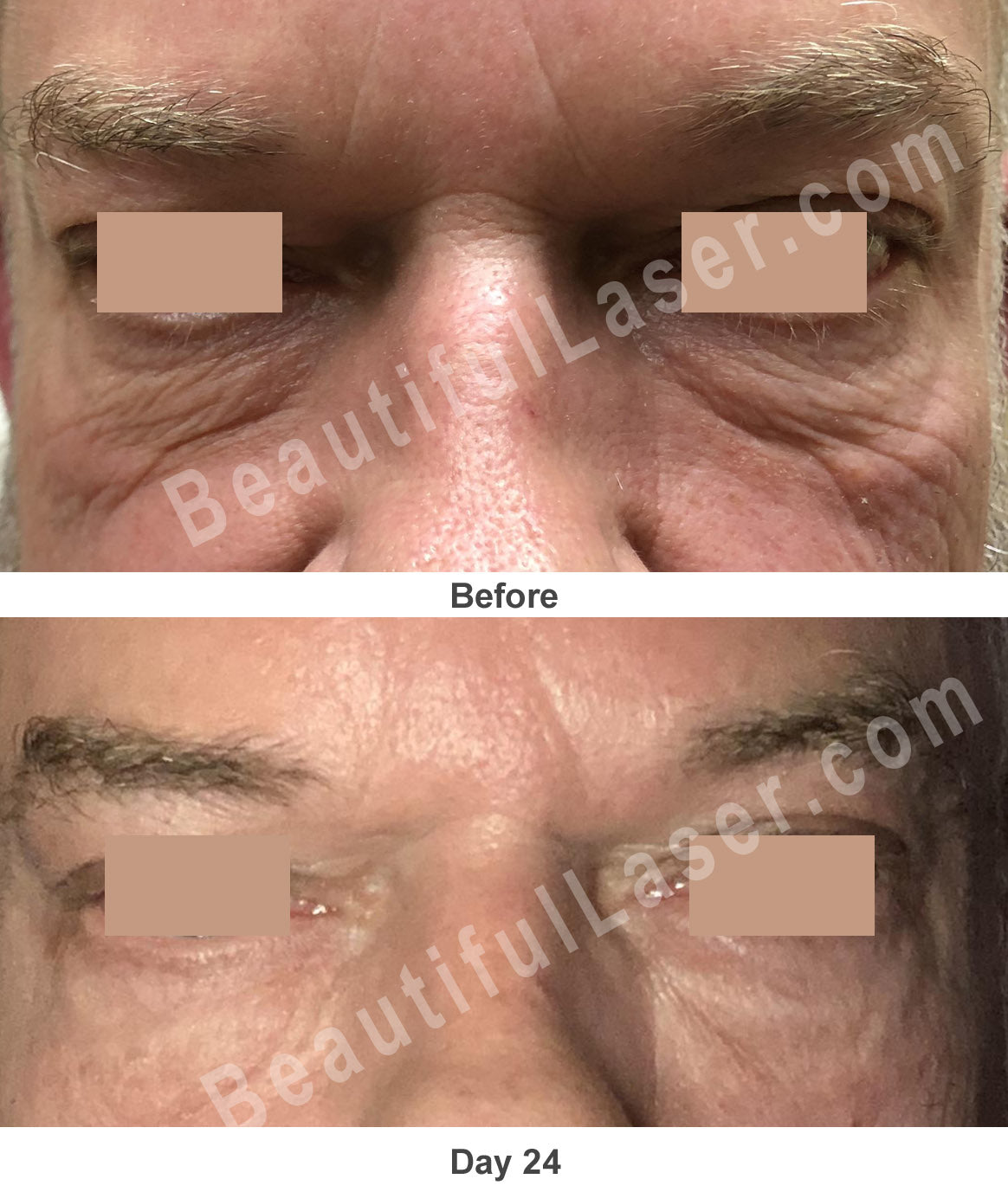 Plasma Pen Under Eye and Glabella Treatment at Beautiful Laser Center Friendswood TX 409-454-9502