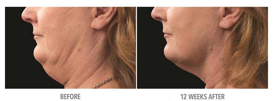 Cryo Fat Freezing Under Chin Beautiful Laser Center Galveston Friendswood TX 409-454-9502 CoolSculpting Mini