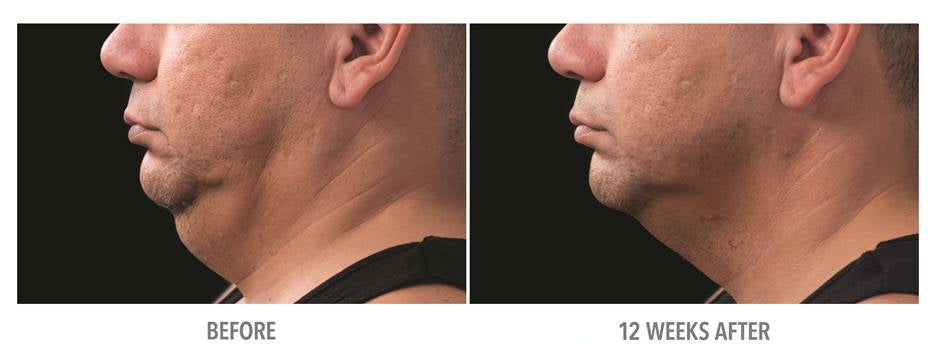 Coolsculpting Mini results from Cryo FatFreeze at Beautiful Laser Center Friendswood and Galveston TX 409-454-9502