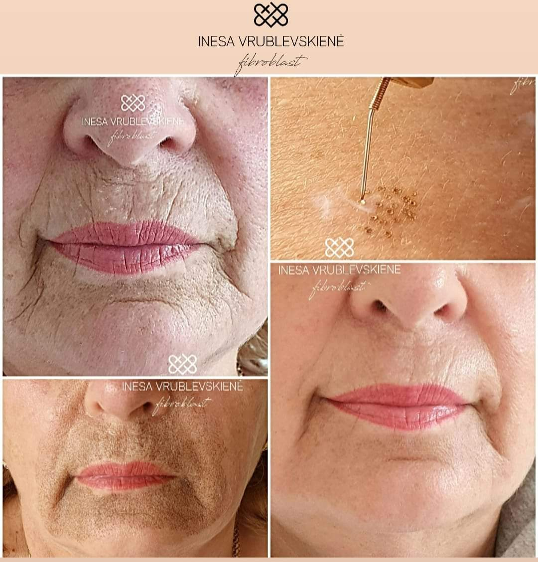 Plasma Pen Fibroblast Upper Lip Wrinkles Beautiful Laser Center 409-454-9502