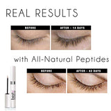 besito Eyelash Growth Serum - 100% Natural Lash Growth Serum for Full Lash and Brow Growth. Made in...