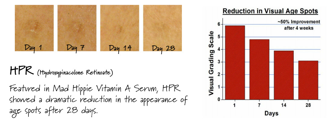 Discoloration before and after HPR