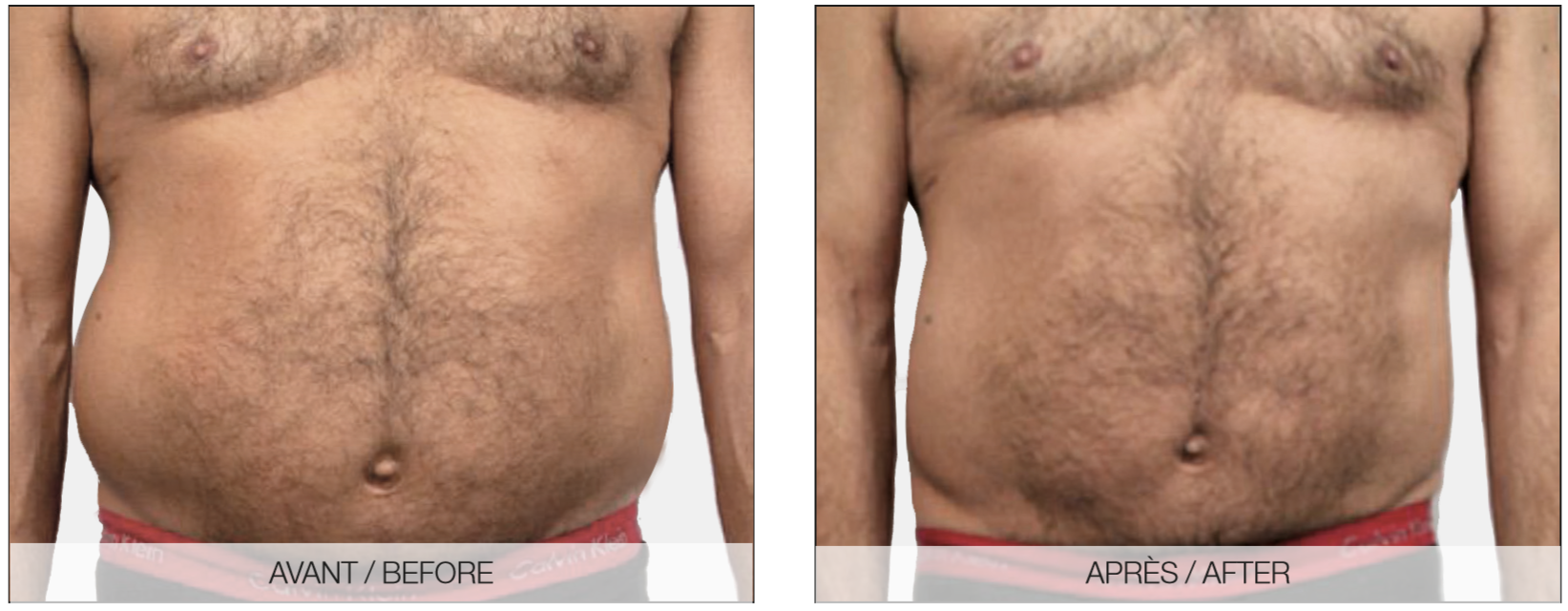 Tummy Tuck Makeover