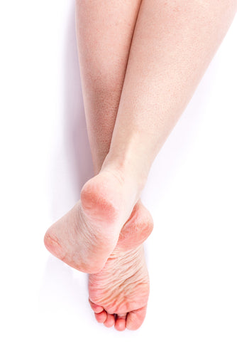Why We Get Cracked Heels & How to Fix Them With These Cracked Heels Treatments