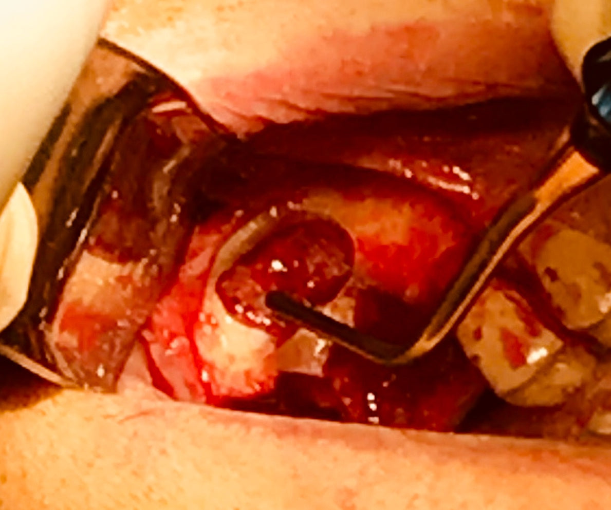 Feeder Course:  Atraumatic Extractions & Socket Grafting with L-PRF  7 ceu  Hands-On Las Vegas