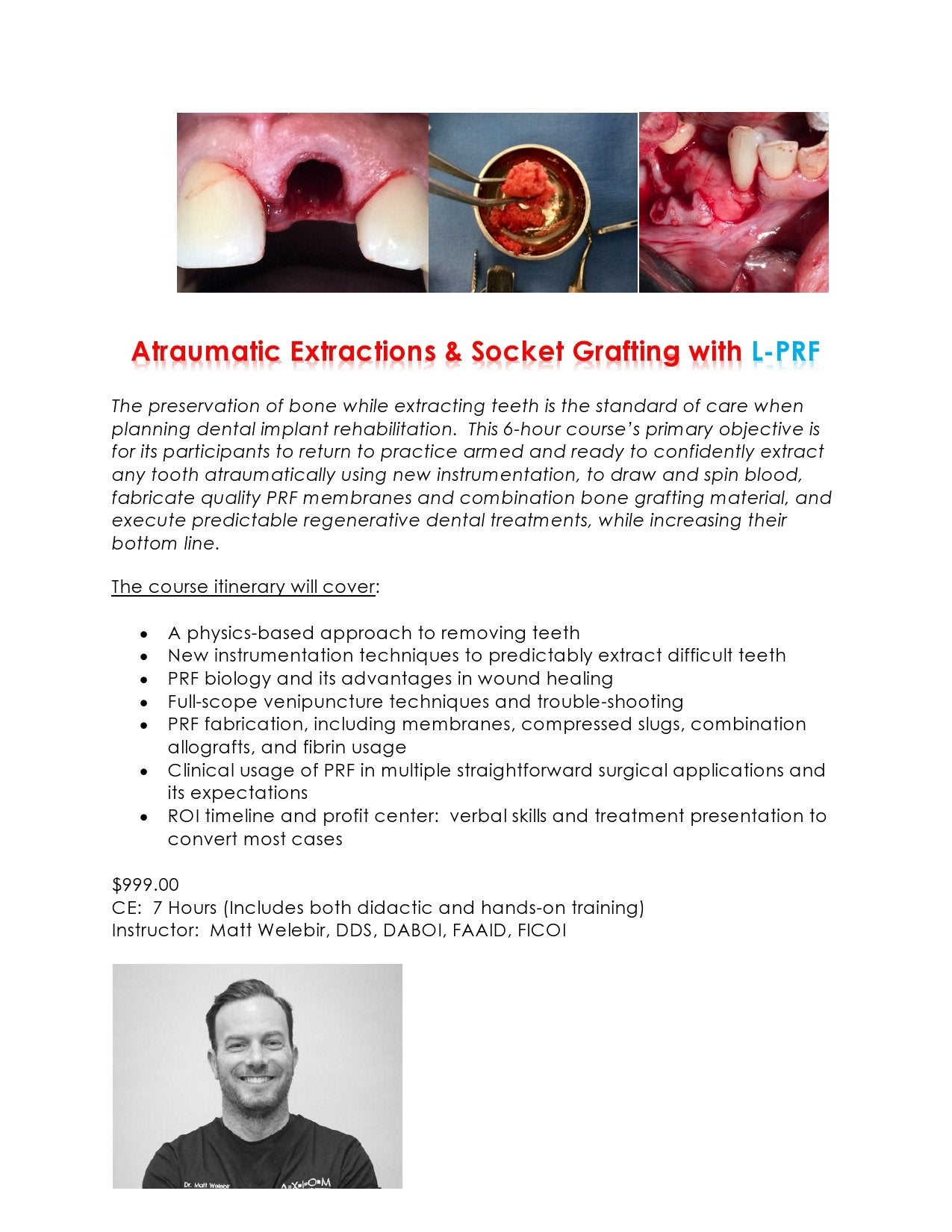 SOLD OUT Salt Lake City March 28 2020 Feeder Course:  Atraumatic Extractions & Socket Grafting with L-PRF  7 ceu  Hand-On