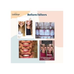 Lumineux Teeth Whitening Strips by Oral Essentials - 21