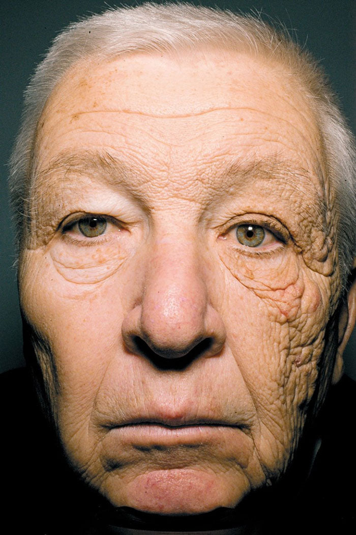 Man with sun exposure on left side of the face compared to right side | ALASTIN Skincare