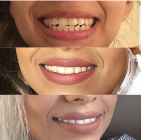 Innovative Whitening Results|Teeth Whitening Before and After #5