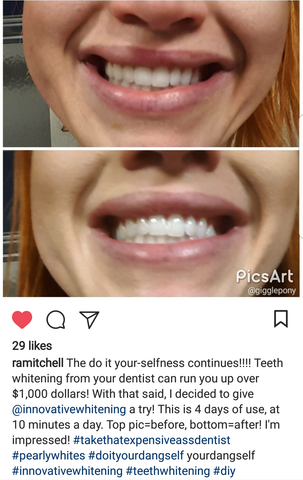 Innovative Whitening Results|Teeth Whitening Before and After #3