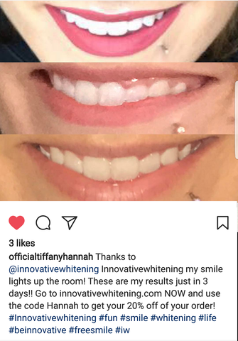 Innovative Whitening Results|Teeth Whitening Before and After #1