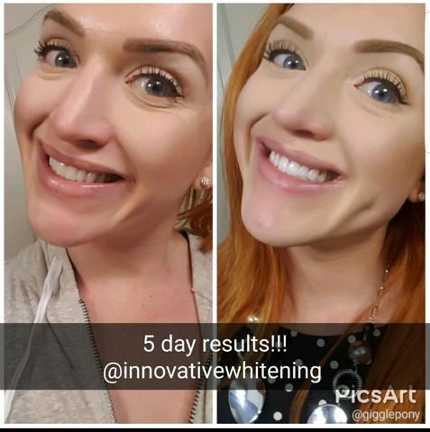 Innovative Whitening Results|Teeth Whitening Before and After #6
