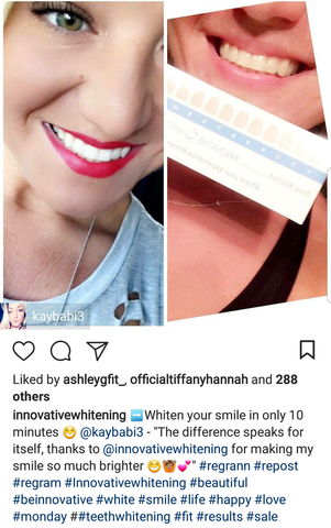 Innovative Whitening Results|Teeth Whitening Before and After #4