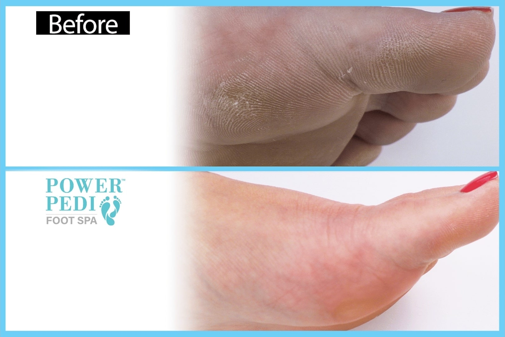 klevarange foot spa second demo