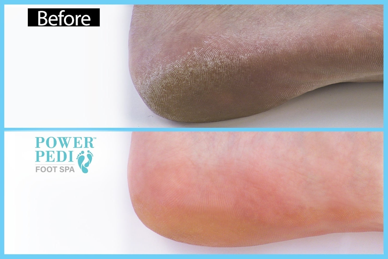 klevarange foot spa first demo