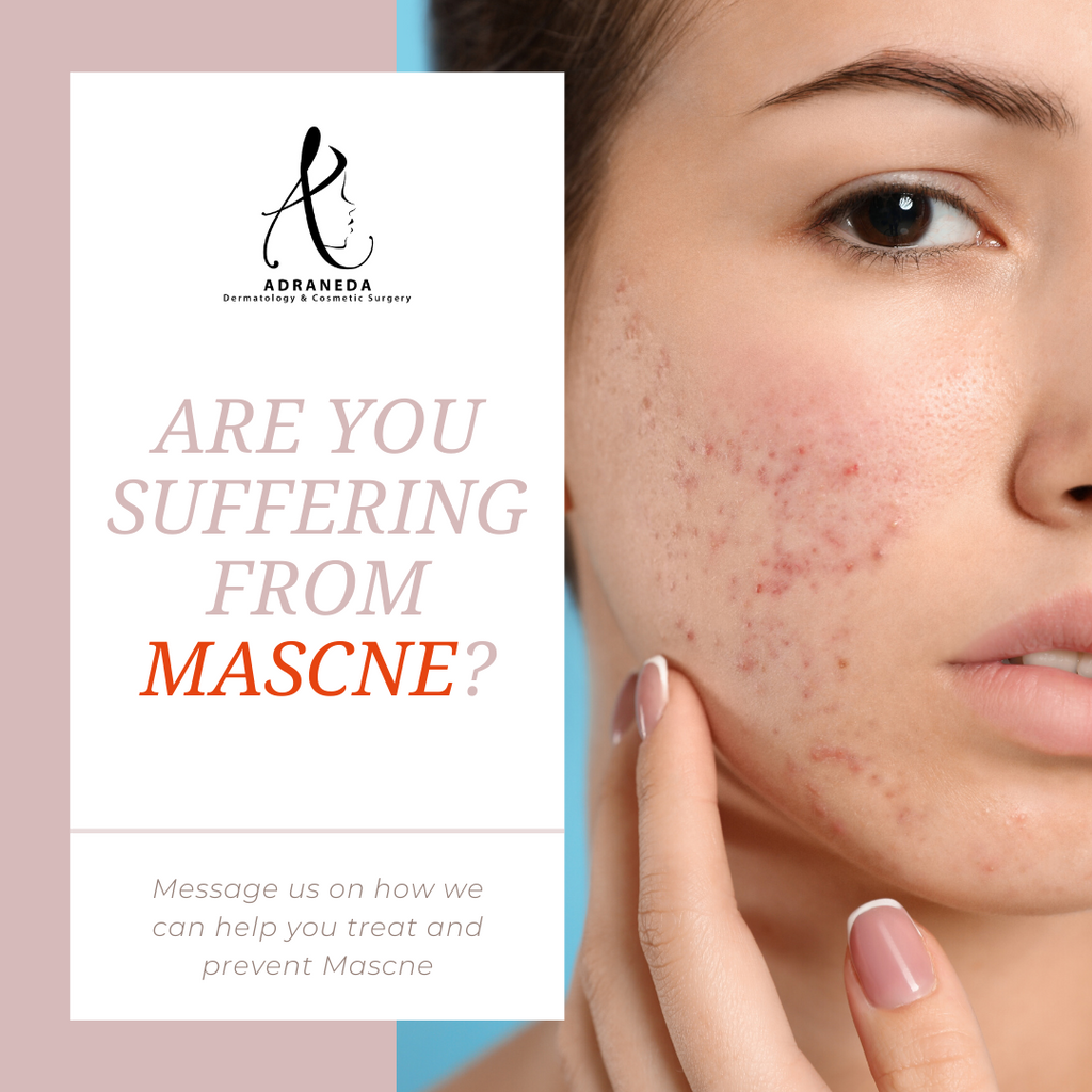 Are you suffering from MASCNE (Acne due to mask)?