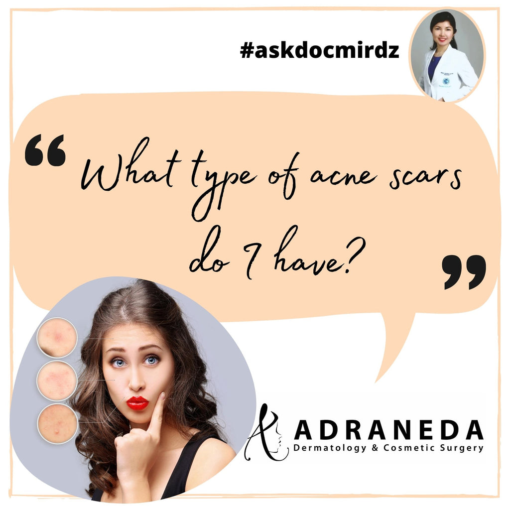"""What type of acne scars do I have?"""