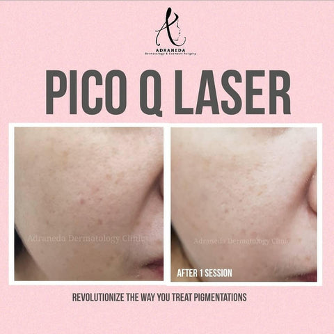 Picolaser, laser whitening, melasma treatment, freckles treatment, skin laser, skin whitening laser