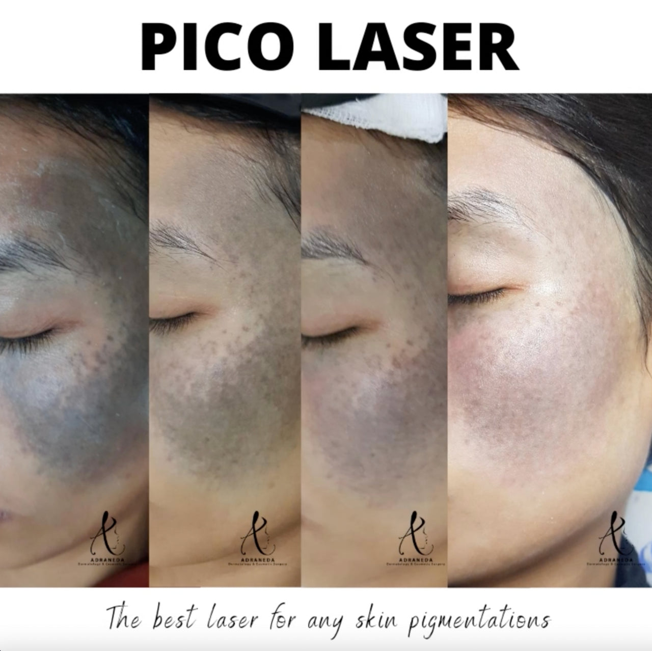 Pico laser, qs ndyag laser, freckles, melasma treatment, tattoo removal, birthmark removal, mole removal, acne marks, leg scars treatment