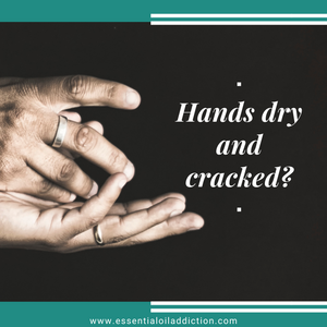 How To Repair Dry, Cracked Hands