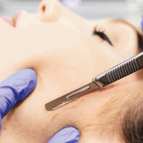 What is dermaplaning and how might it help me?