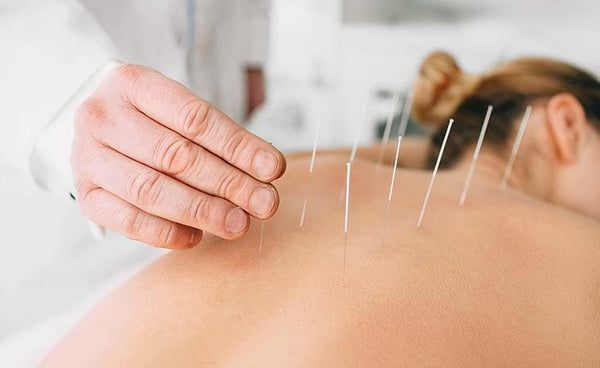 Acupuncture Holisitic Healing