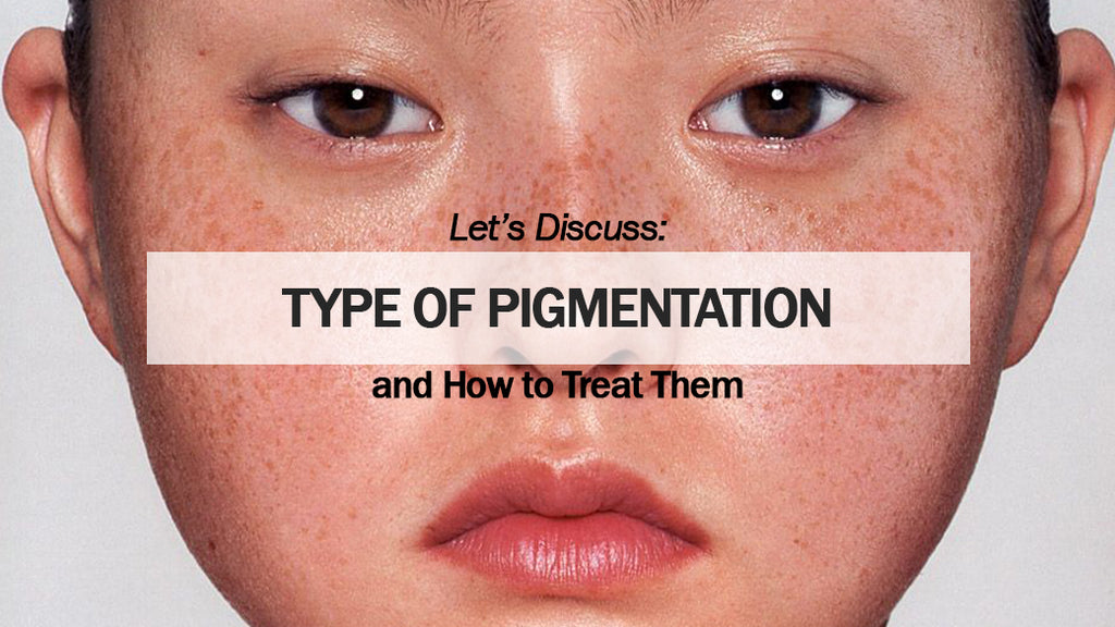Type of pigmentation and How to treat them