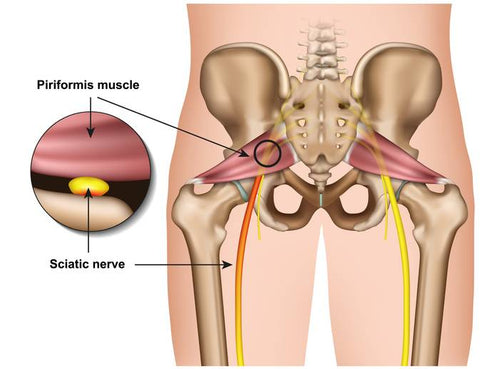 other causes for scinatic nerve pain