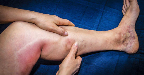 What you should know about Deep Vein Thrombosis (DVT)