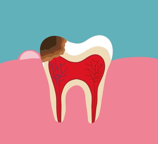 Diagram of a tooth with pulpitis