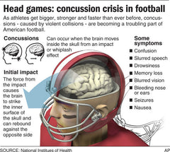 Football Concussions Chart