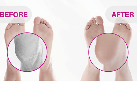 Baby Feet Exfoliating Foot Mask 3 Pack Click Play Enjoy